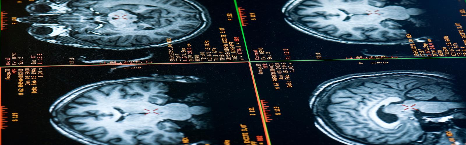MRI brain images
